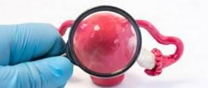 Снижена эхогенность яичника: причины, возможные патологии