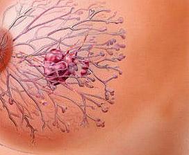 Можно ли рожать женщине с раком молочной железы?