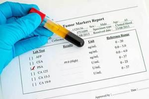 ПСА при раке простаты: показатели нормы, значение онкомаркеров