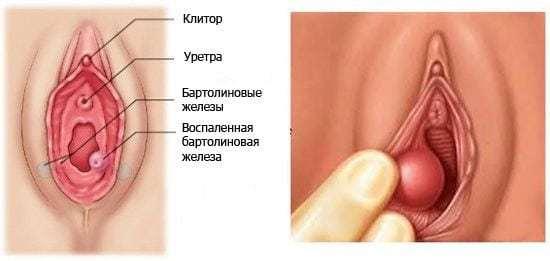 Бартолинит у женщин: фото и лечение в домашних условиях