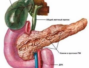 Камни поджелудочной железы - причины, симптомы, диагностика и лечение