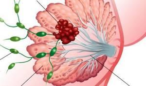 Красная химия при раке молочной железы что это такое
