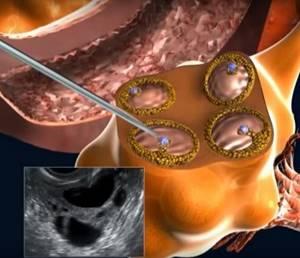 Пункция яичников: что это, как делают, ощущения, месячные