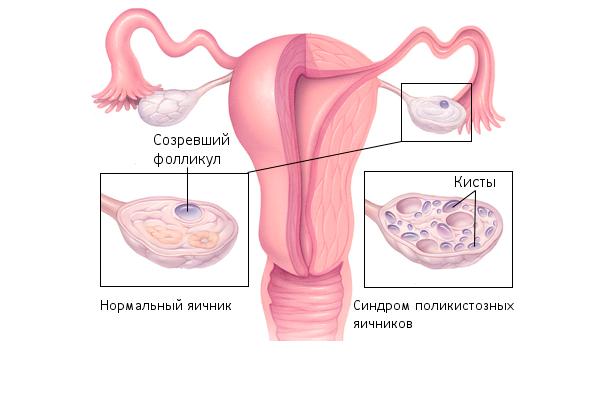 Андрогены - какие это гормоны и их роль в организме человека