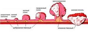 Полип поджелудочной железы: симптомы, причины, лечение и прогноз