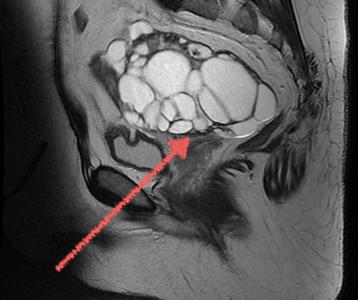 МРТ яичников: что показывает, как проводится, расшифровка
