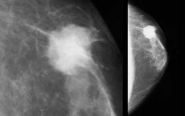 Инвазивный рак молочной железы: симптомы, лечение и прогноз
