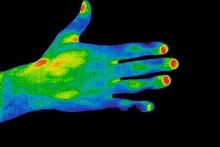 Термография щитовидной железы: что это такое?