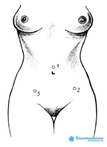 Лапароскопия яичников: что это такое, как происходит, подготовка
