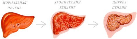 Хронический гепатит: виды, причины, симптомы, лечение