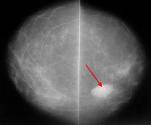 Фиброзно жировая инволюция молочных желез: что это такое?