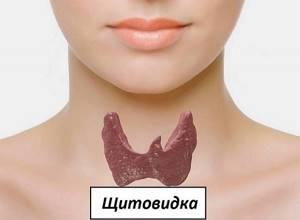Киста щитовидной железы: причины, симптомы. Как лечить кисты щитовидной железы