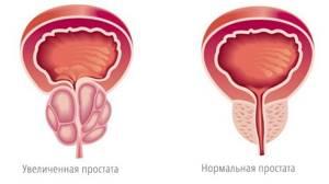 Эмболизация артерий простаты в лечении аденомы простаты