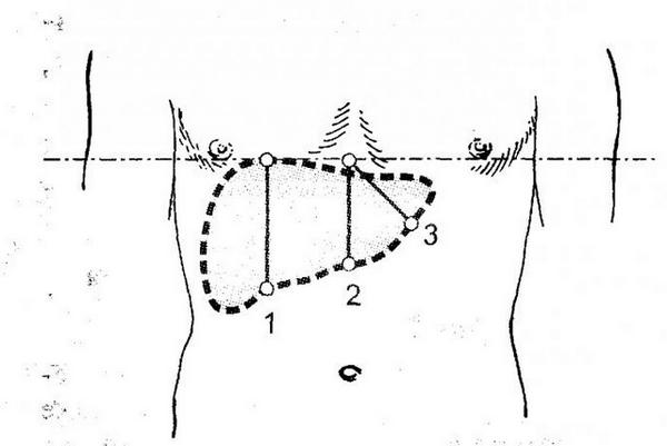 Перкуссия печени по Курлову: размеры в норме, определение границ пальпацией