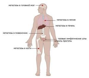 Биохимический рецидив после радикальной простатэктомии