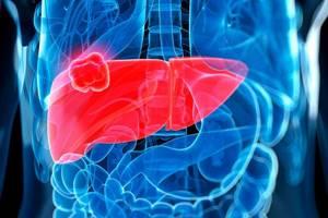 Гепатобластома - причины, симптомы, диагностика и лечение