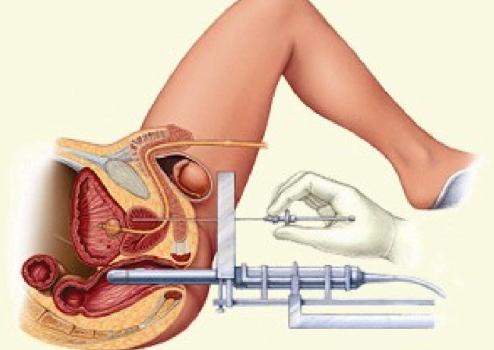 Что такое брахитерапия рака предстательной железы