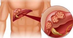 Вторичный билиарный цирроз печени - причины, симптомы, диагностика и лечение