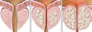Что такое доброкачественная гиперплазия предстательной железы