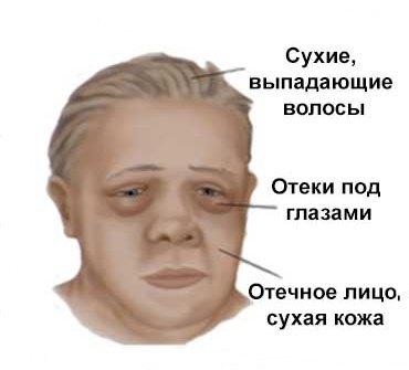 Микседема: что это? Причины, симптомы и лечение