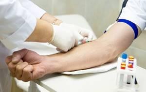 Норма ПСА у мужчин 70 лет при аденоме простаты, как снизить уровень ПСА