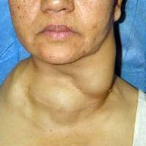 Фолликулярная опухоль щитовидной железы: симптомы, прогноз и лечение