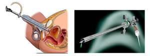 Лечение простатита лазером: отзывы, проведение и последствия