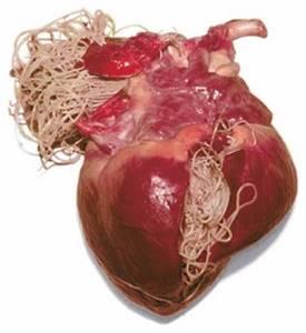 Паразитарные заболевания печени - причины, симптомы, диагностика и лечение