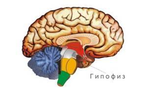Киста гипофиза головного мозга: симптомы, лечение и последствия