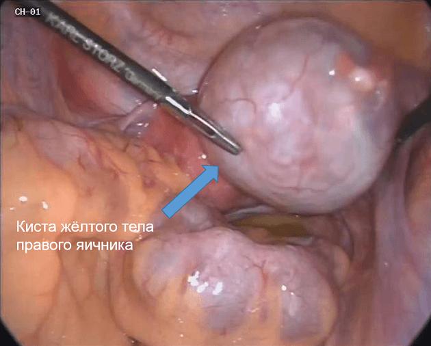 Желтое тело на яичнике: что это такое на УЗИ, размеры, количество