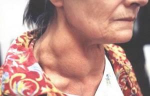 Медуллярный рак щитовидной железы - причины, симптомы, диагностика и лечение