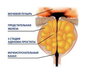 ДГПЖ 3 степени — что это за диагноз? Клиническая картина и методы лечения