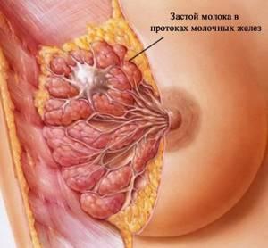 Массаж при лактостазе у кормящих мам: как правильно массировать грудь и устранить застой молока