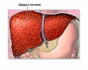 Аутоиммунный гепатит - причины, симптомы, диагностика и лечение