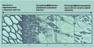 Что такое аденокарцинома предстательной железы