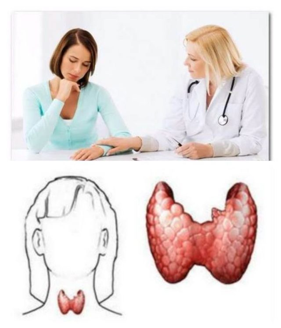Жизнь после удаления щитовидной железы: прогноз жизни (мужчины, женщины), осложнения, отзывы