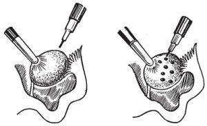 Каутеризация яичников: что это такое и как проводится, беременность