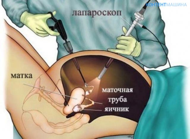 Коагуляция яичников: что это, как и зачем проводится