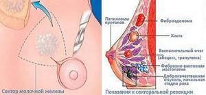 Секторальная резекция молочной железы: что это такое, подготовка и послеоперационный период