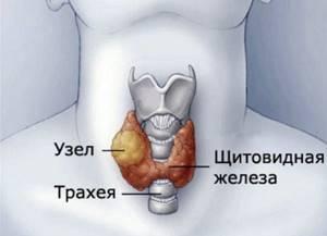 Изоэхогенный узел щитовидной железы – что это такое и как лечить?