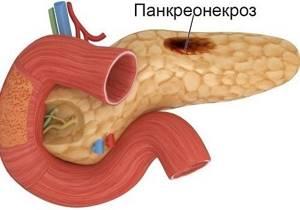 Смерть от панкреатита: можно ли умереть от болезни