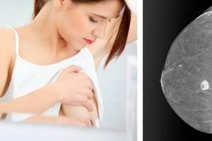 Жировой некроз молочной железы - причины, симптомы, диагностика и лечение