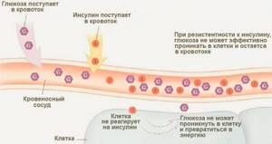 Как правильно сдать анализ крови на инсулин
