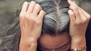 Выпадение волос при заболевании щитовидной железы: причины, и что делать