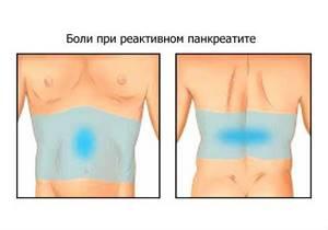 Реактивный панкреатит - причины, симптомы, диагностика и лечение