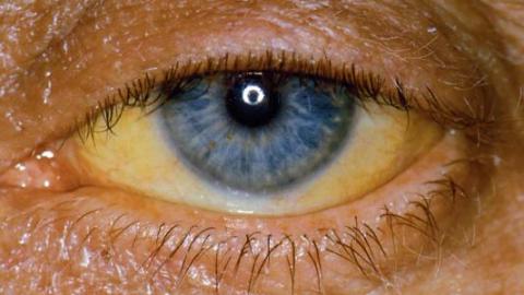 Синдром цитолиза печени: что это такое, причины появления, диагностика