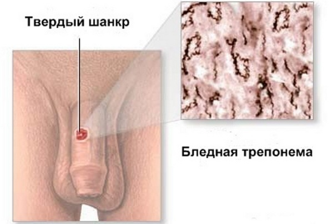 Сифилис молочных желез - причины, симптомы, диагностика и лечение