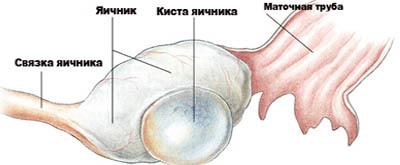 Анэхогенное образование в яичнике: что это такое, причины, симптомы, диагностика, лечение