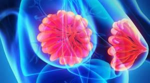 Послеродовый мастит: причины, симптомы, диагностика, лечение