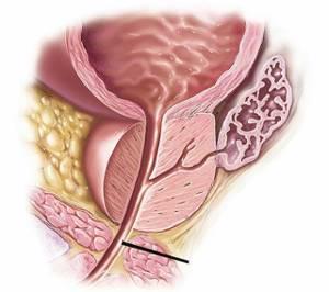 простатита железа у мужчин